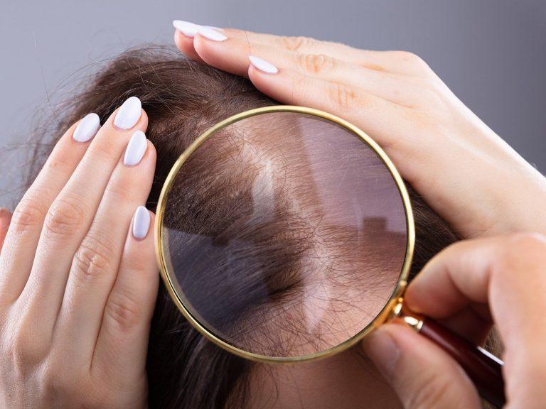caduta capelli femminile