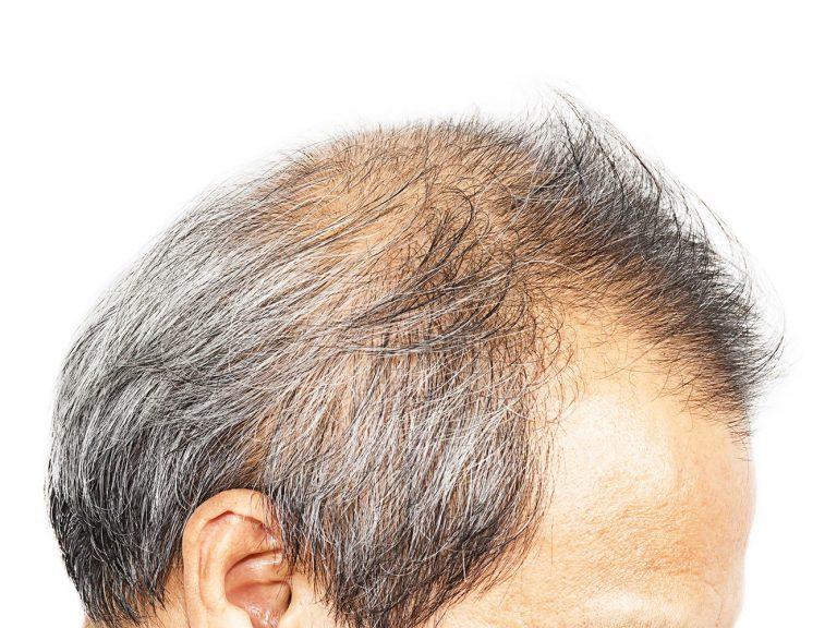caduta capelli maschile