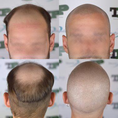 tricopigmentazione protesi