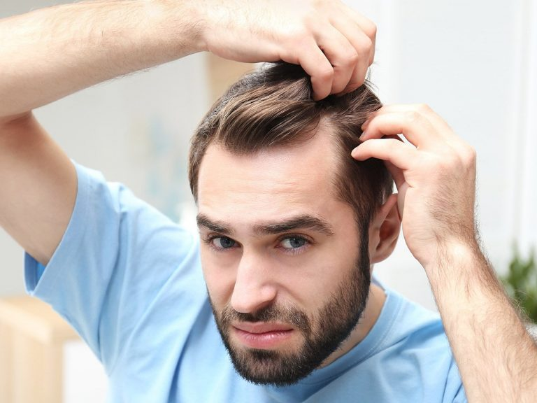protesi ai capelli