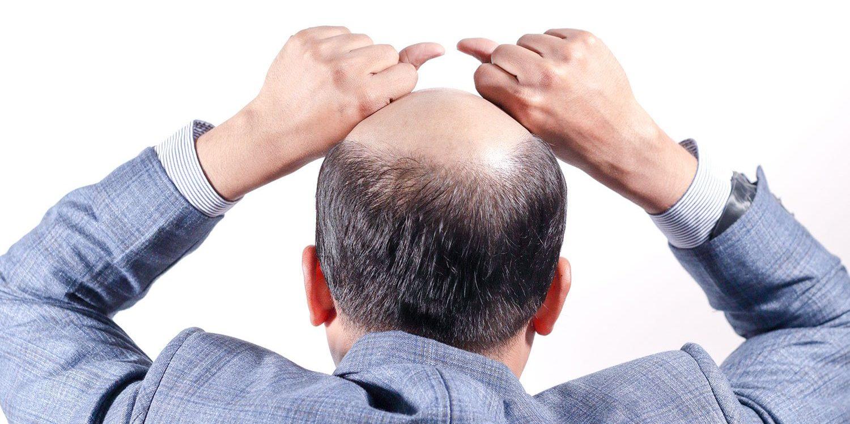 rimedi perdita capelli