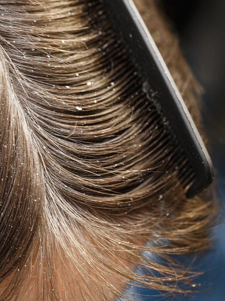 seborrea capelli