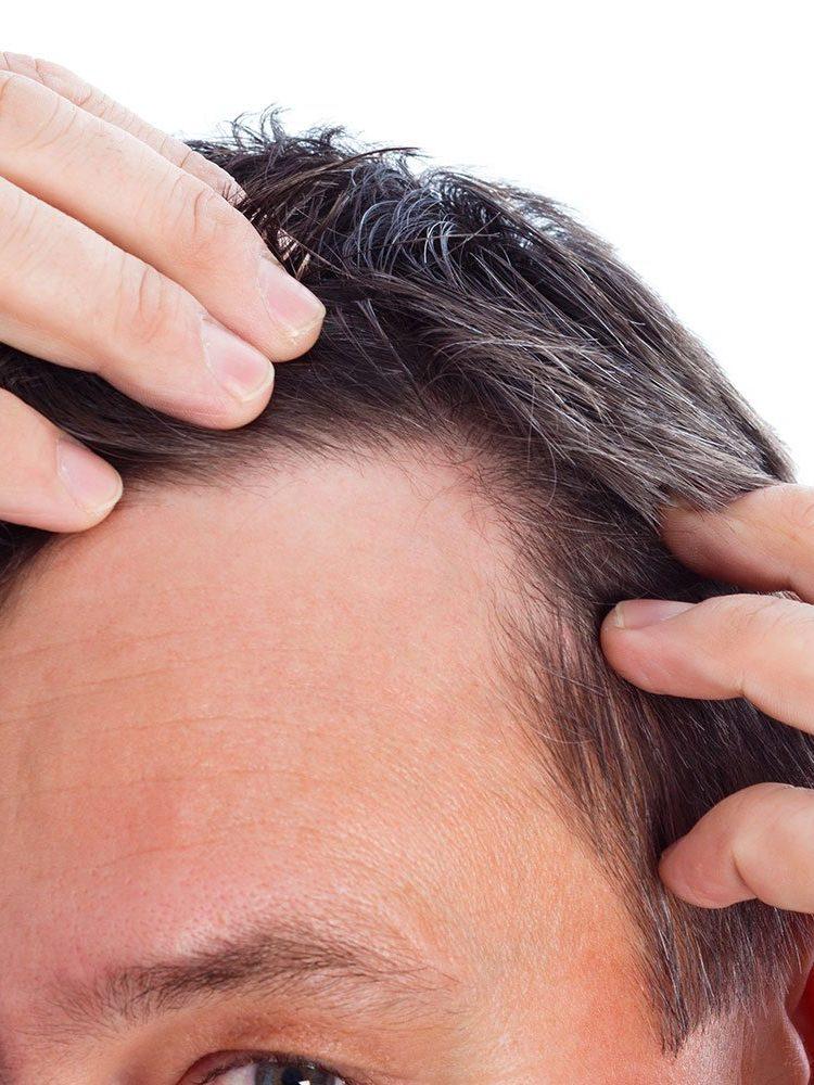 stempiatura capelli